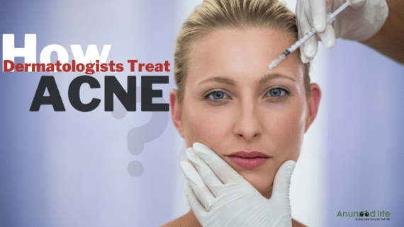 How Dermatologists Treat Acne